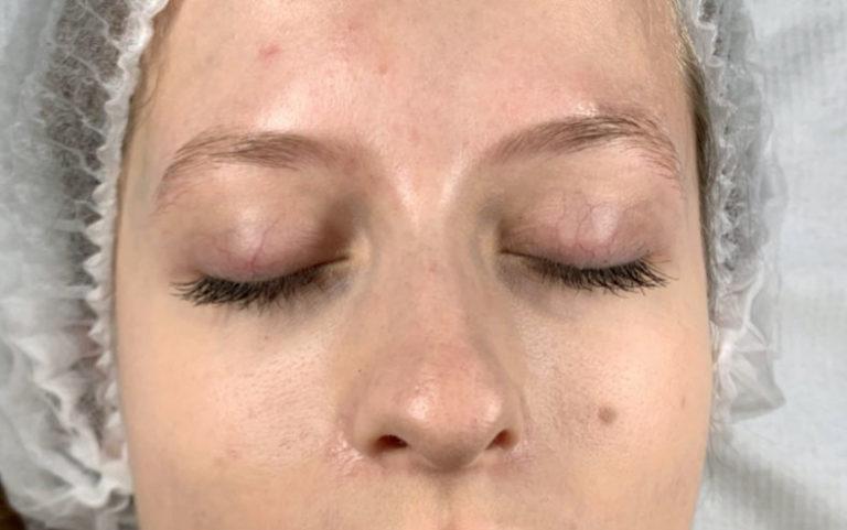 phibrows zabieg - przed i po