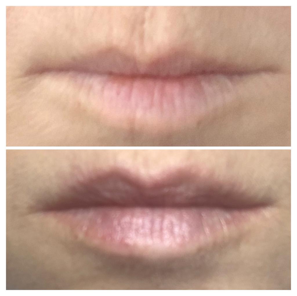 zabieg fresh lips - przed i po