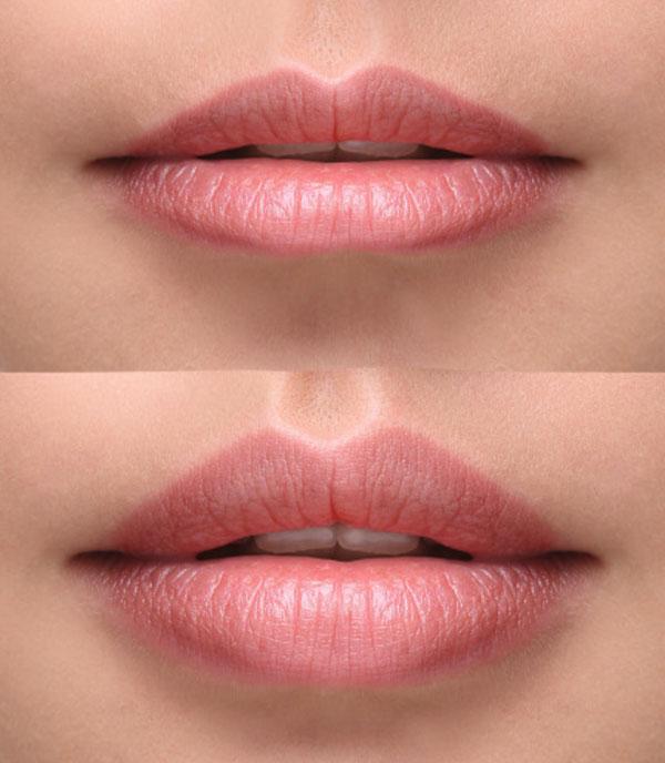 Zabieg odmładzający, usta przed i po