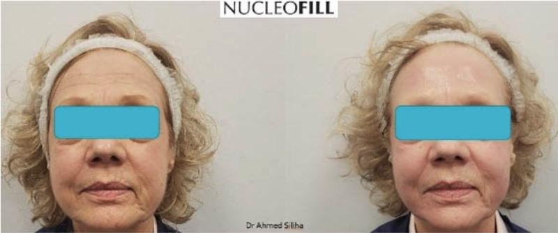 Zabiegi Nucleofill - Fresh Touch Beauty Avenue